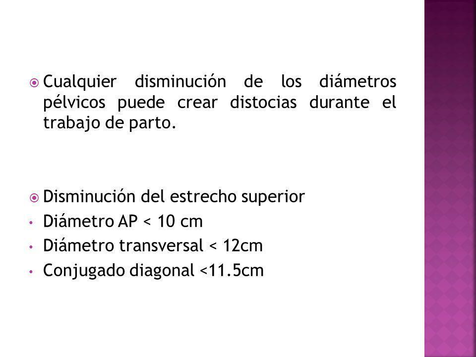 Cualquier disminución de los diámetros pélvicos puede crear distocias durante el trabajo de parto.