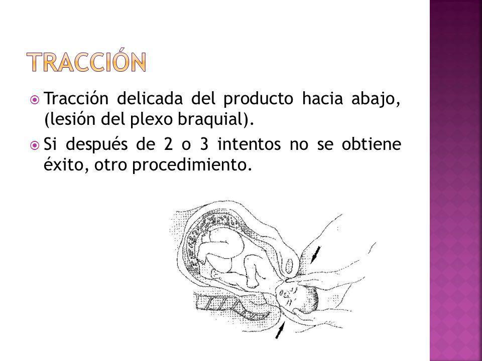 tracción Tracción delicada del producto hacia abajo, (lesión del plexo braquial).