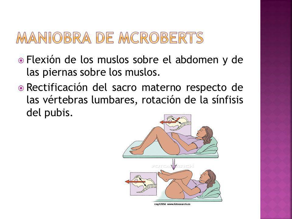 Maniobra de mcroberts Flexión de los muslos sobre el abdomen y de las piernas sobre los muslos.