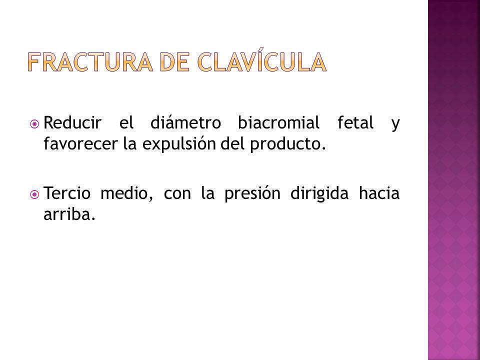 Fractura de clavícula Reducir el diámetro biacromial fetal y favorecer la expulsión del producto.