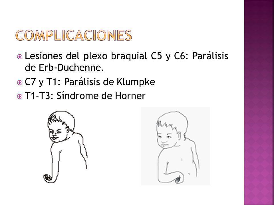 complicaciones Lesiones del plexo braquial C5 y C6: Parálisis de Erb-Duchenne. C7 y T1: Parálisis de Klumpke.