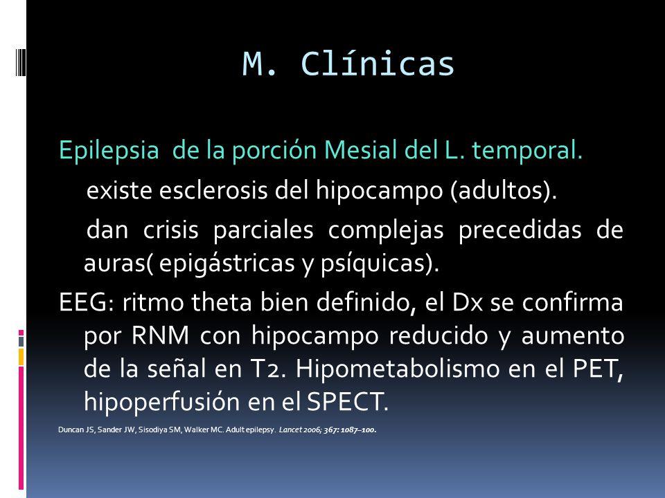 M. Clínicas Epilepsia de la porción Mesial del L. temporal.