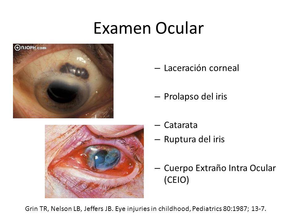 Examen Ocular Laceración corneal Prolapso del iris Catarata