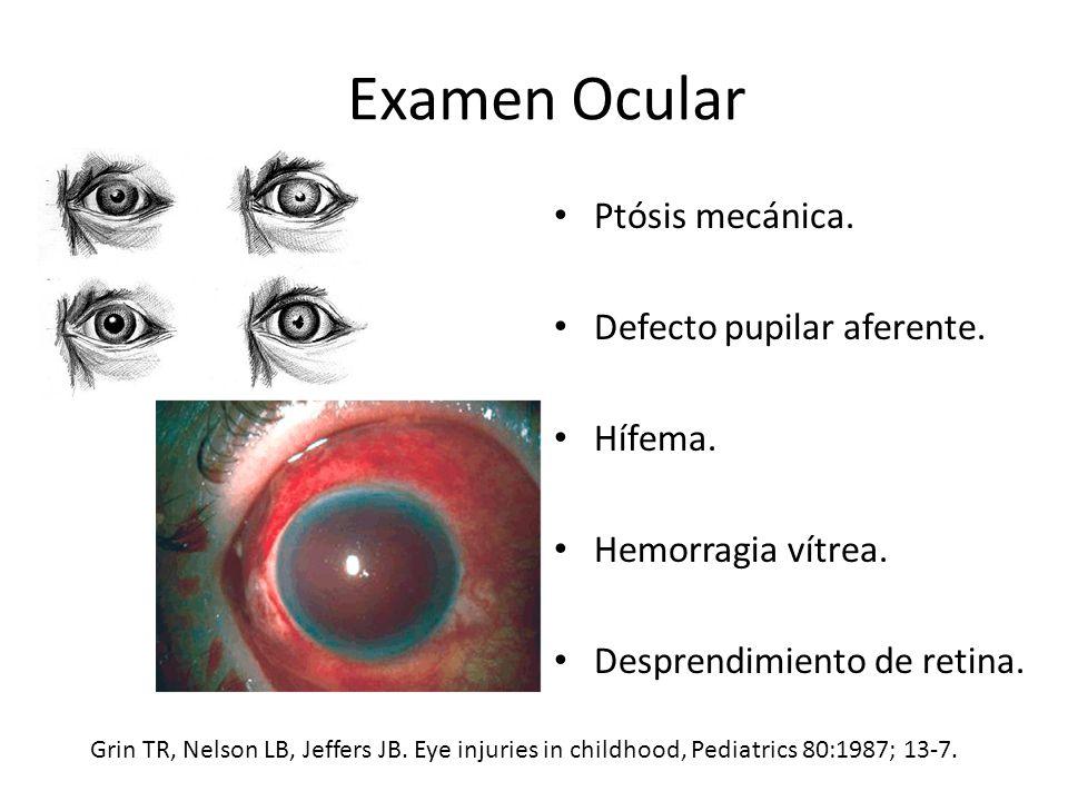 Examen Ocular Ptósis mecánica. Defecto pupilar aferente. Hífema.