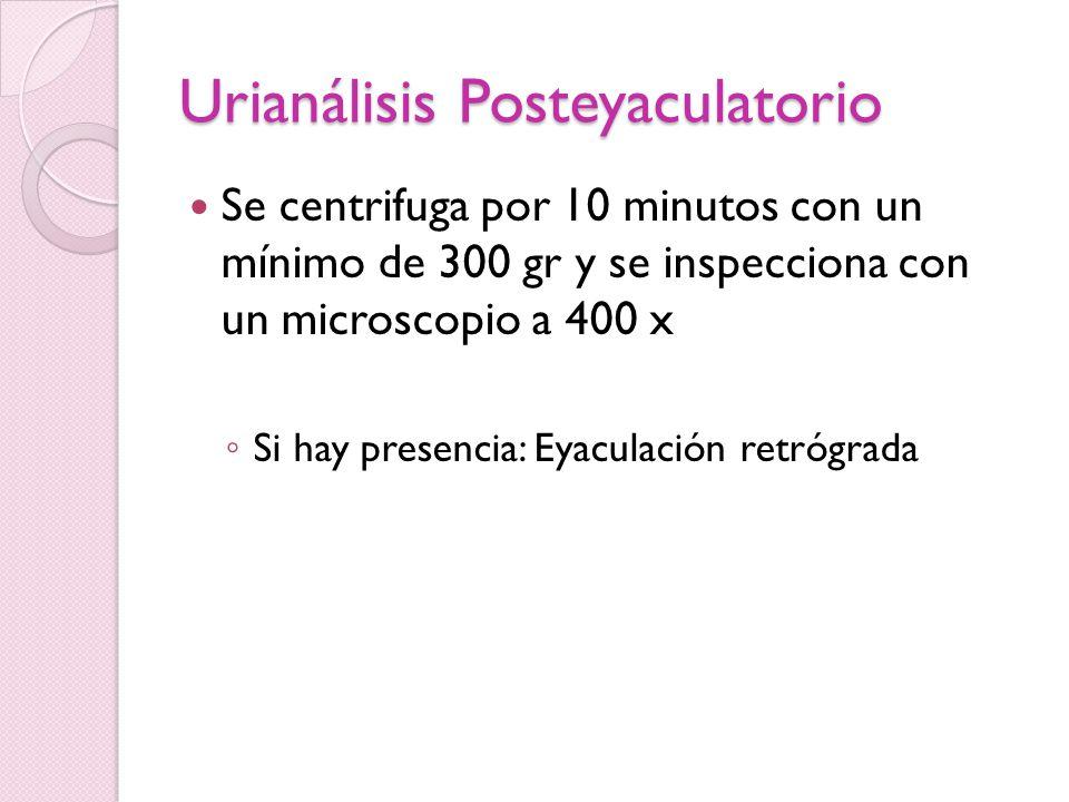 Urianálisis Posteyaculatorio