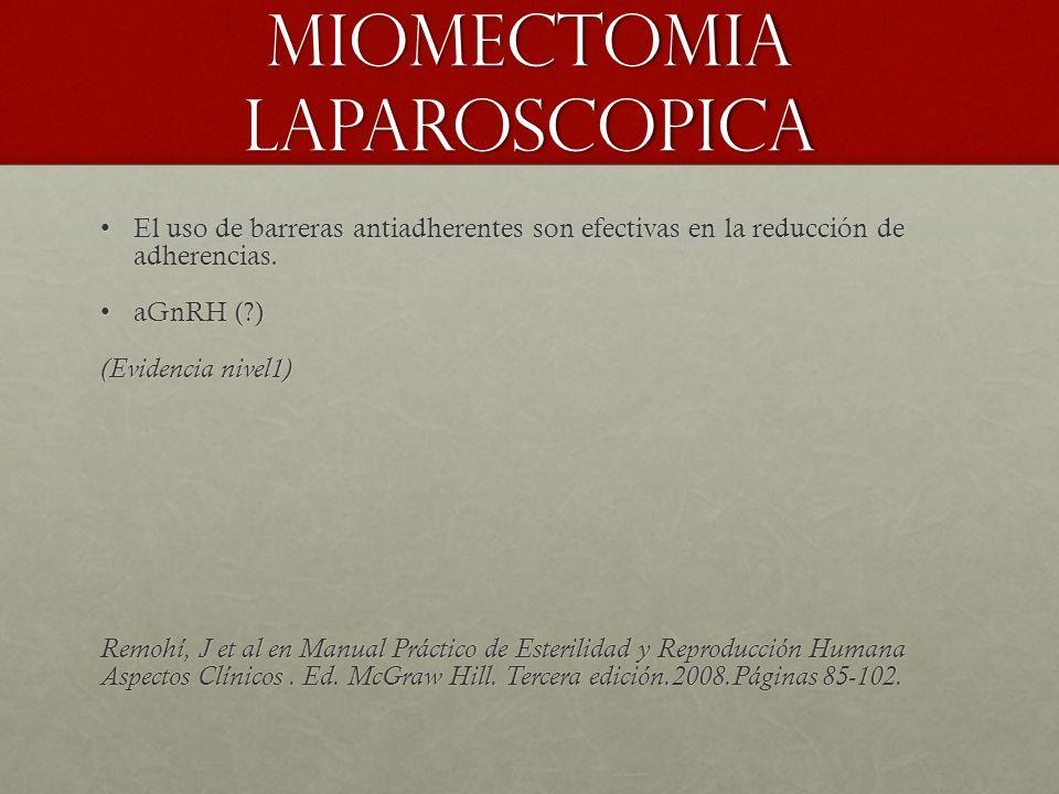Miomectomia laparoscopica