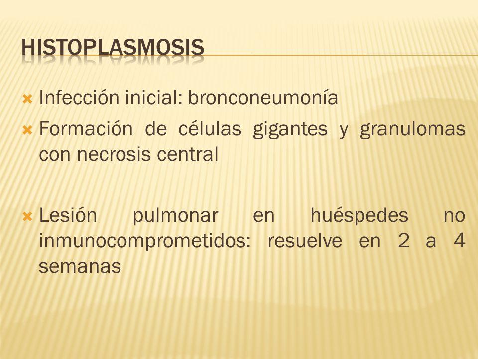 histoplasmosis Infección inicial: bronconeumonía