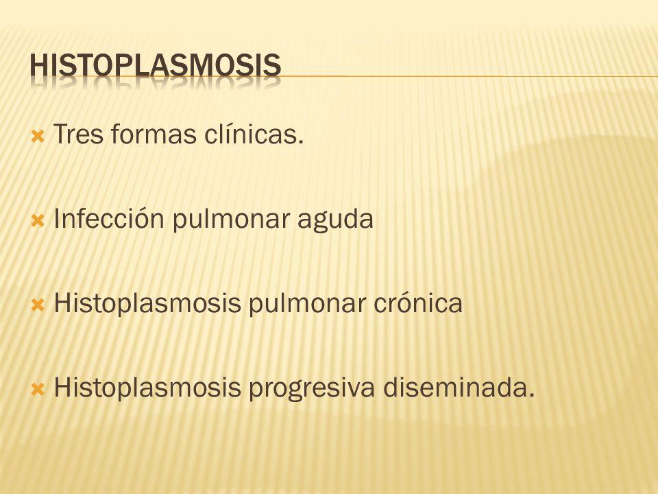histoplasmosis Tres formas clínicas. Infección pulmonar aguda