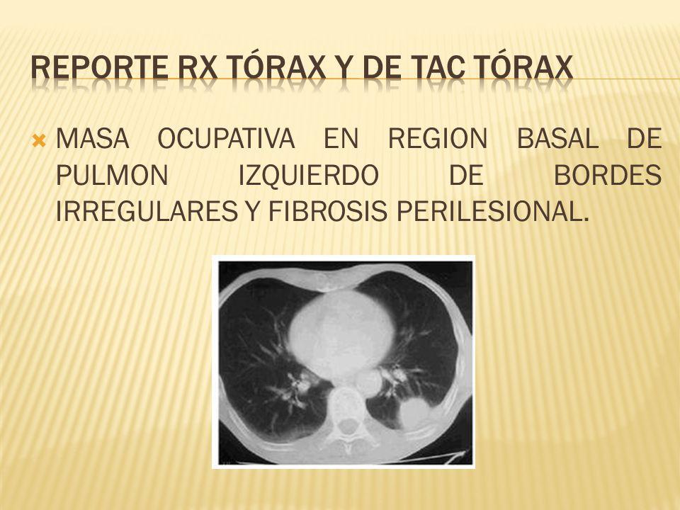 REPORTE RX TÓRAX Y DE TAC TÓRAX