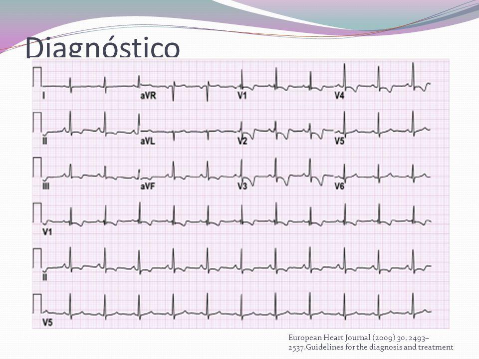 Diagnóstico EKG: Debe realizarse una vez que se sospecha el diagnóstico. Hipertrofia de VD: isquemia.