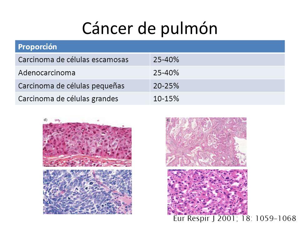 Cáncer de pulmón Proporción Carcinoma de células escamosas 25-40%