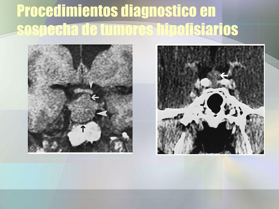Procedimientos diagnostico en sospecha de tumores hipofisiarios