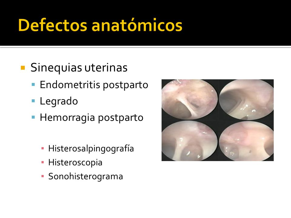 Defectos anatómicos Sinequias uterinas Endometritis postparto Legrado