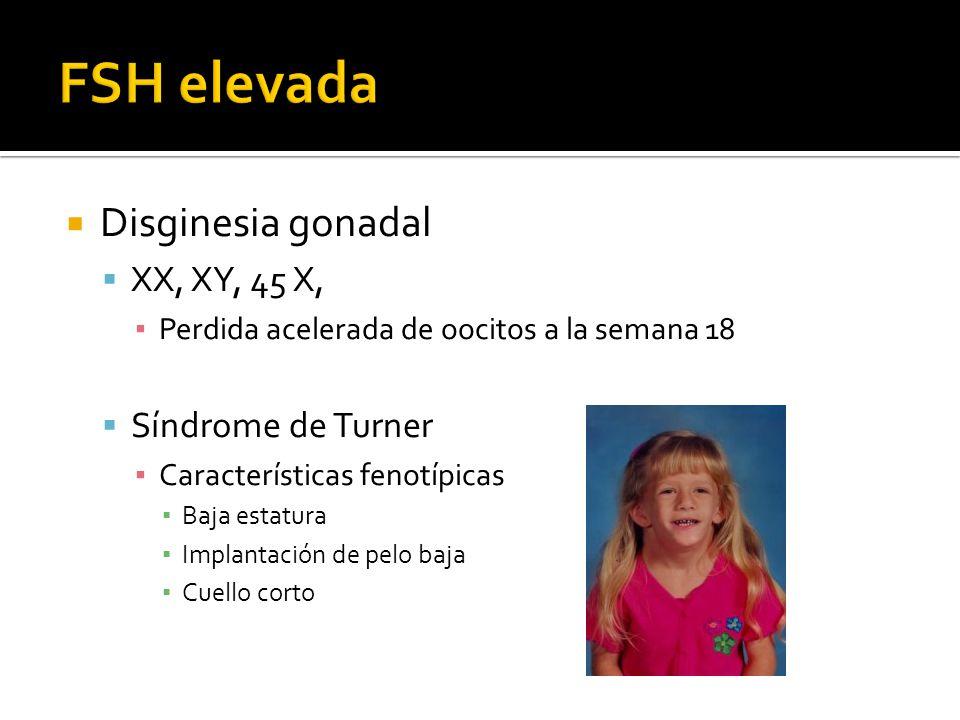 FSH elevada Disginesia gonadal XX, XY, 45 X, Síndrome de Turner
