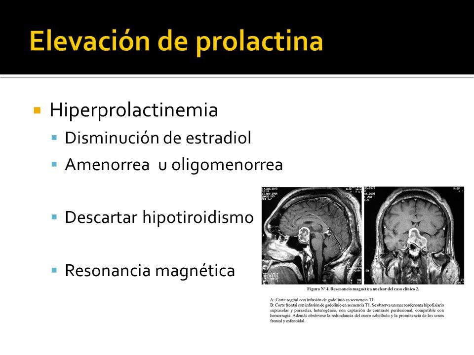 Elevación de prolactina