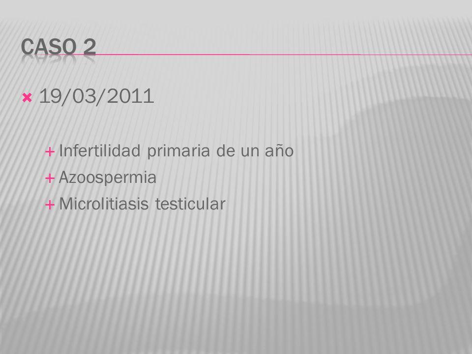 Caso 2 19/03/2011 Infertilidad primaria de un año Azoospermia