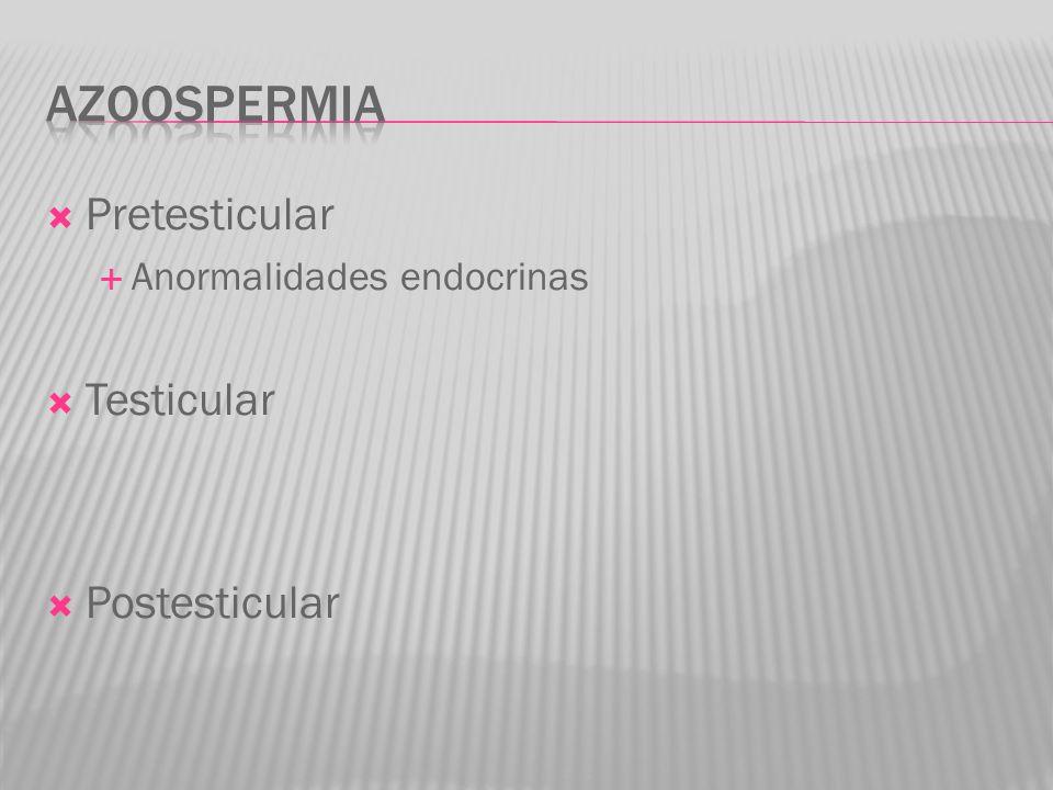 Azoospermia Pretesticular Testicular Postesticular