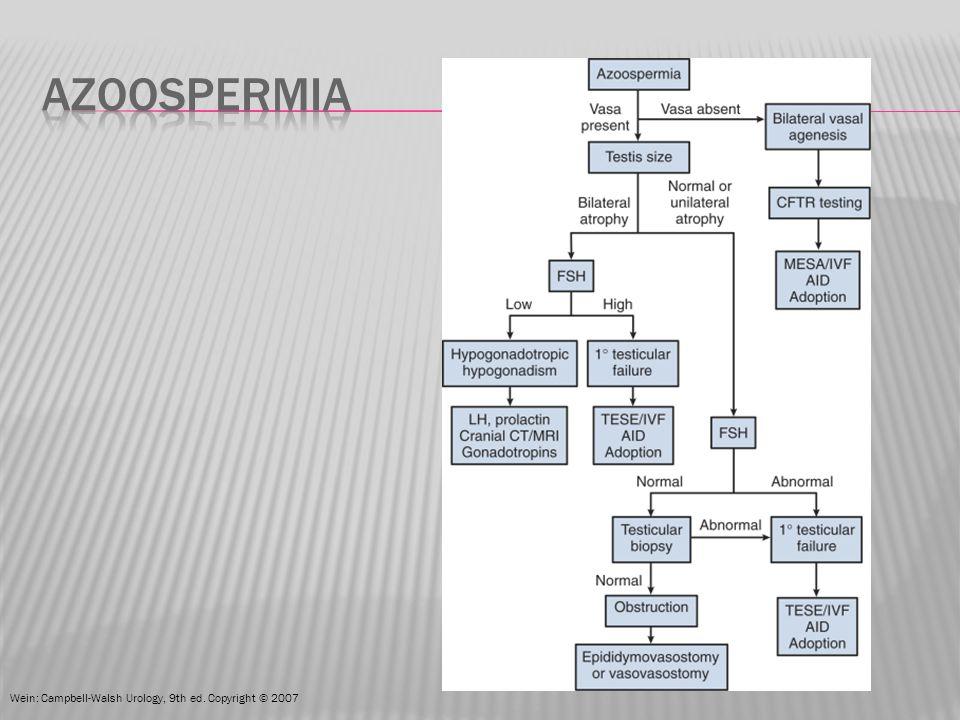 azoospermia Wein: Campbell-Walsh Urology, 9th ed. Copyright © 2007