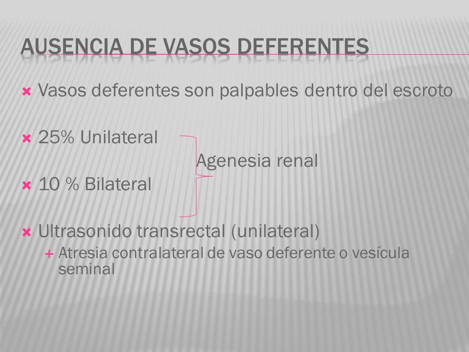 Ausencia de vasos deferentes