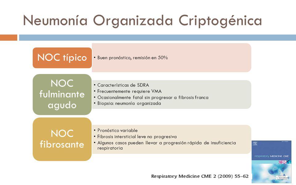 Neumonía Organizada Criptogénica