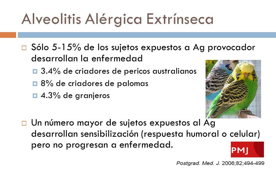 Alveolitis Alérgica Extrínseca