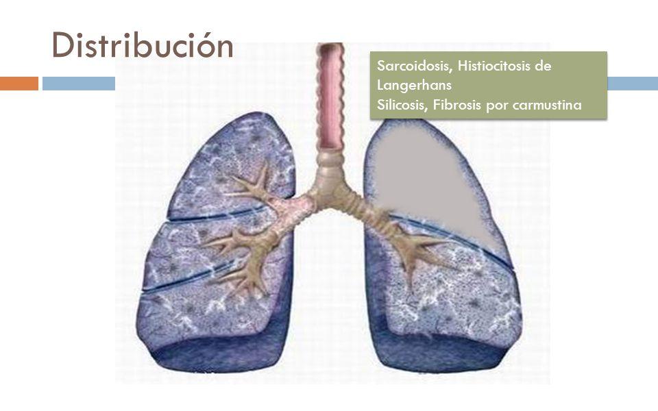 Distribución Sarcoidosis, Histiocitosis de Langerhans