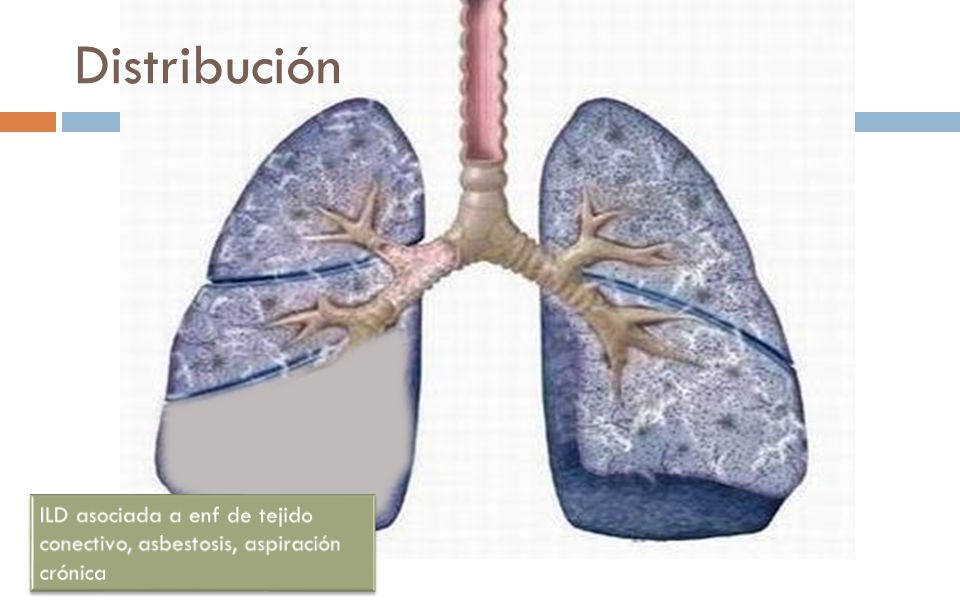 Distribución Distribution. Upper lung predominance: sarcoidosis, pulmonary Langerhans cell. histiocytosis, silicosis, coal worker's pneumoconiosis,