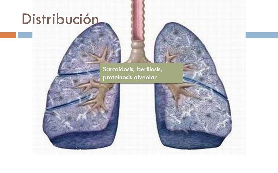 Distribución Sarcoidosis, beriliosis, proteinosis alveolar
