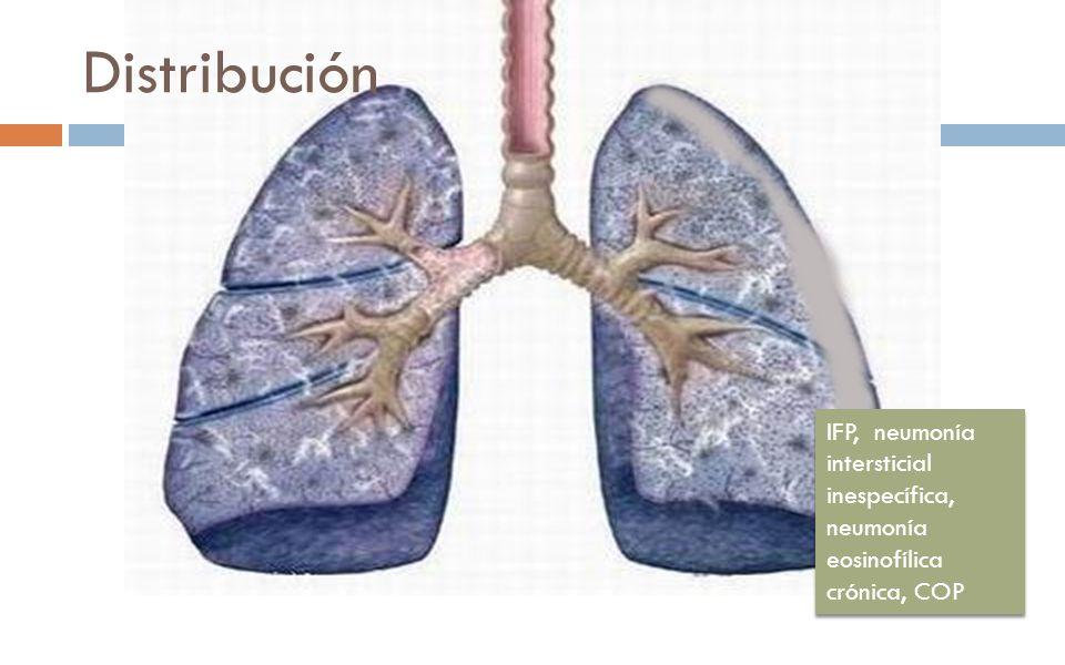 Distribución IFP, neumonía intersticial inespecífica, neumonía eosinofílica crónica, COP. Distribution.
