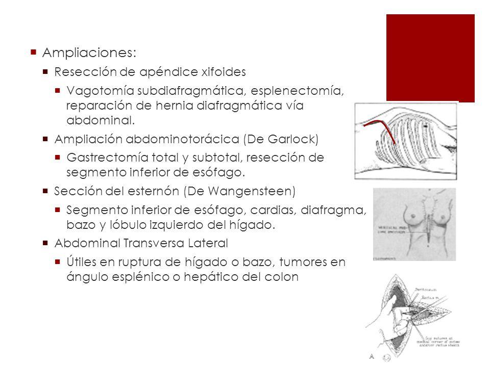 Ampliaciones: Resección de apéndice xifoides