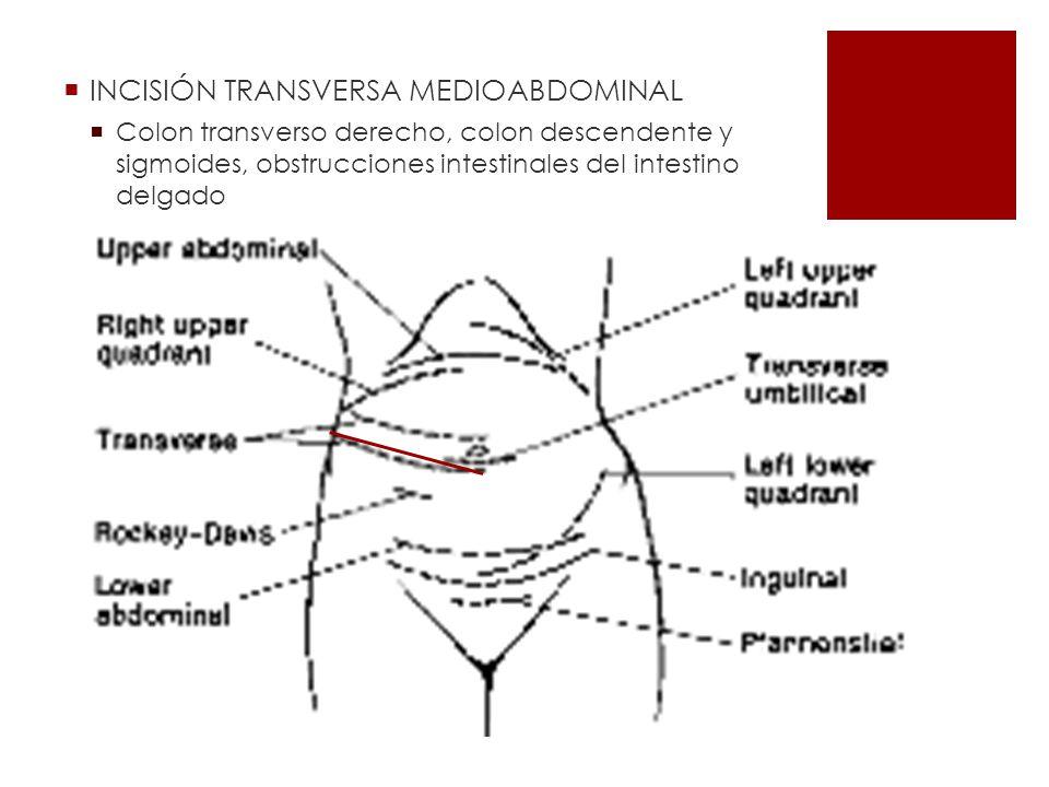 INCISIÓN TRANSVERSA MEDIOABDOMINAL