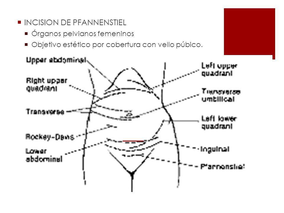 INCISION DE PFANNENSTIEL