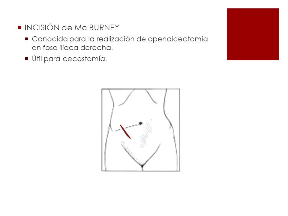 INCISIÓN de Mc BURNEY Conocida para la realización de apendicectomía en fosa iliaca derecha.