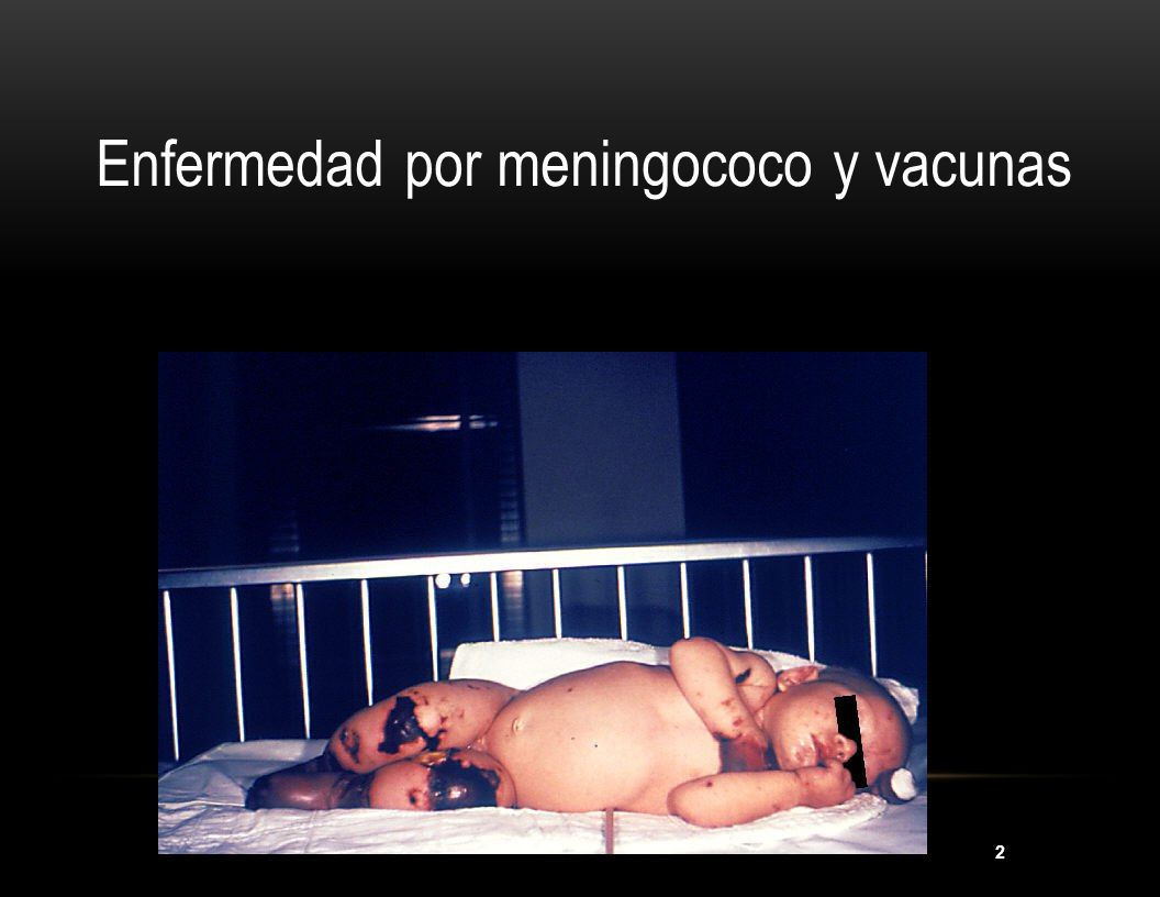 Enfermedad por meningococo y vacunas