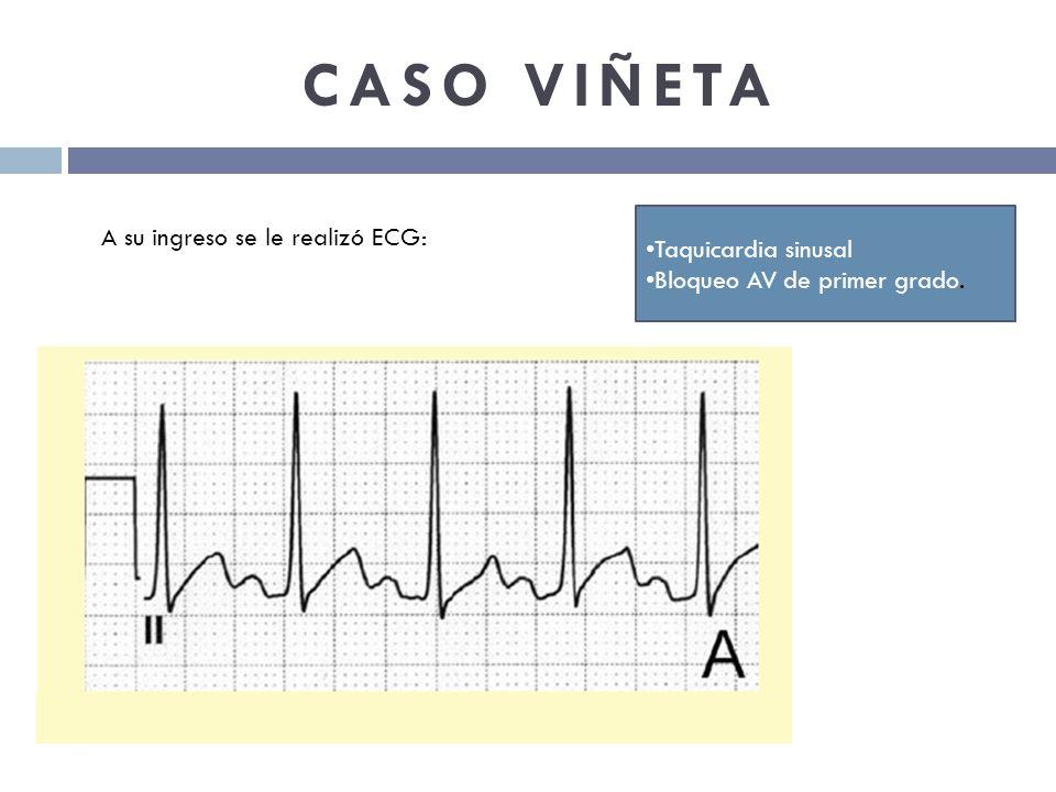 CASO VIÑETA A su ingreso se le realizó ECG: Taquicardia sinusal
