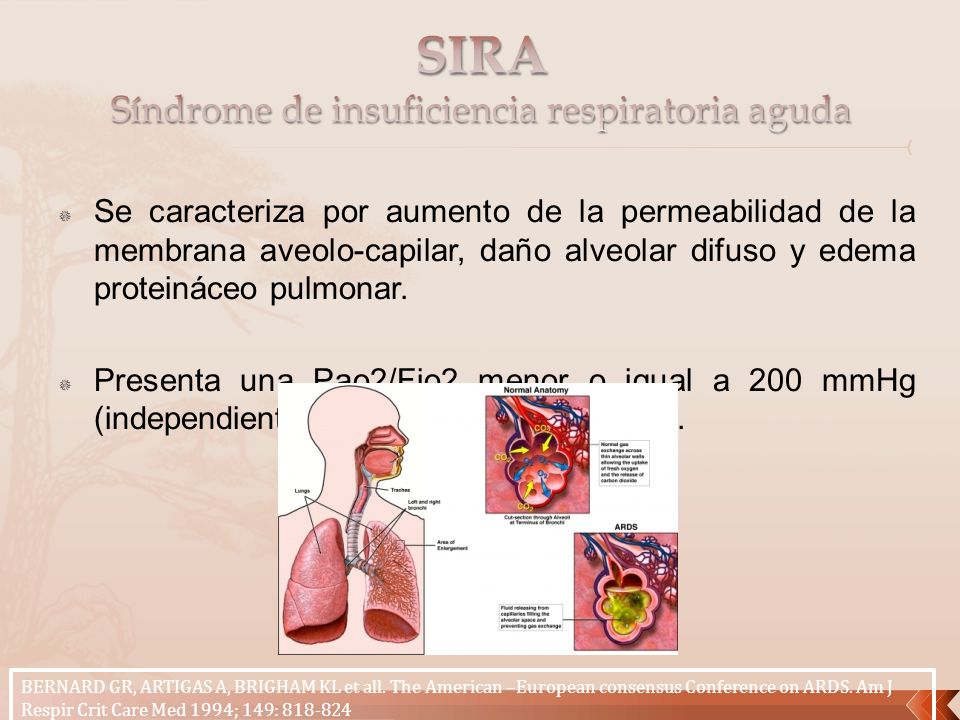 SIRA Síndrome de insuficiencia respiratoria aguda