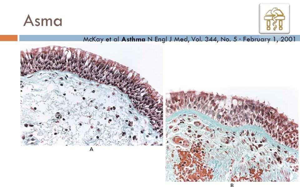 Asma McKay et al Asthma N Engl J Med, Vol. 344, No. 5 · February 1, 2001