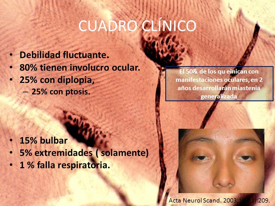 CUADRO CLÍNICO Debilidad fluctuante. 80% tienen involucro ocular.