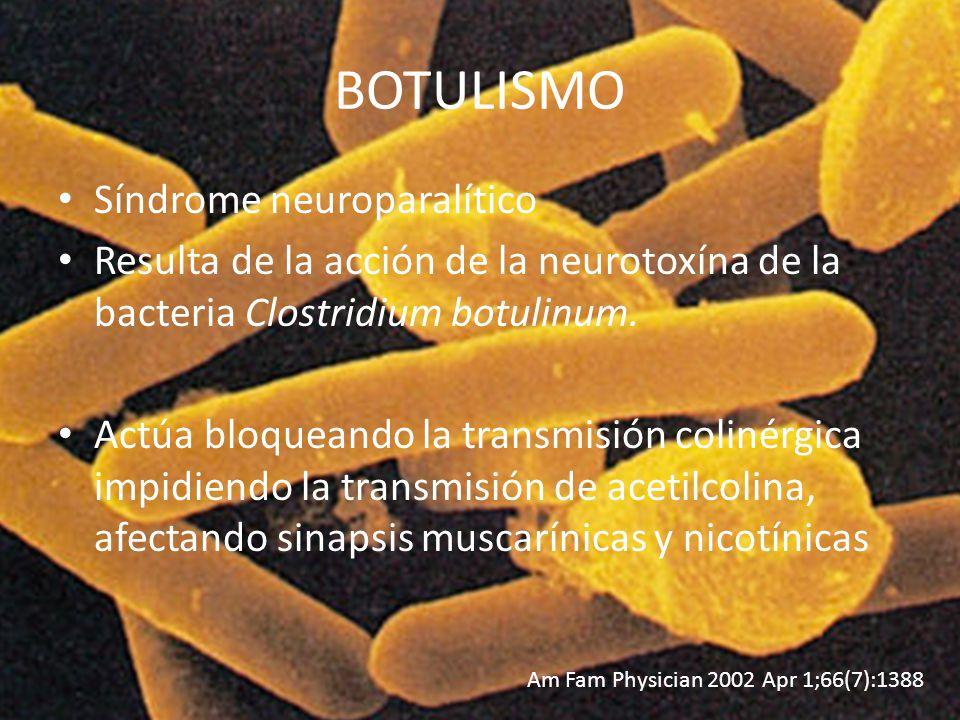 BOTULISMO Síndrome neuroparalítico