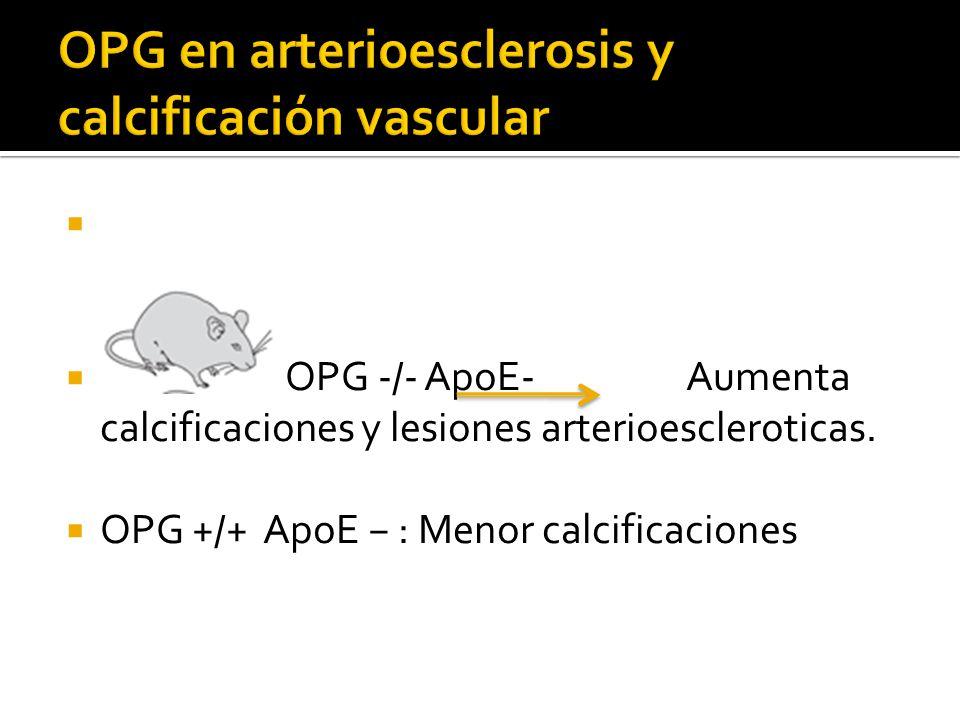 OPG en arterioesclerosis y calcificación vascular