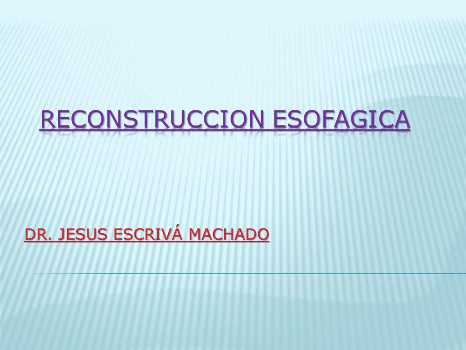 RECONSTRUCCION ESOFAGICA