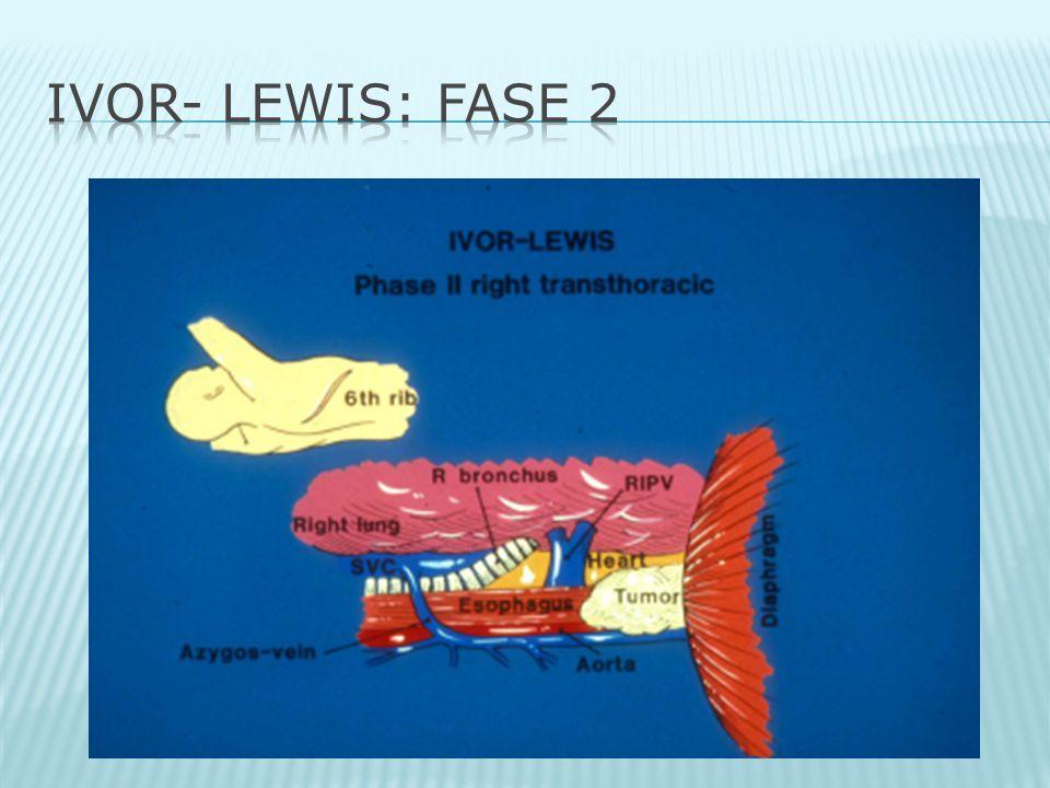 IVOR- LEWIS: Fase 2