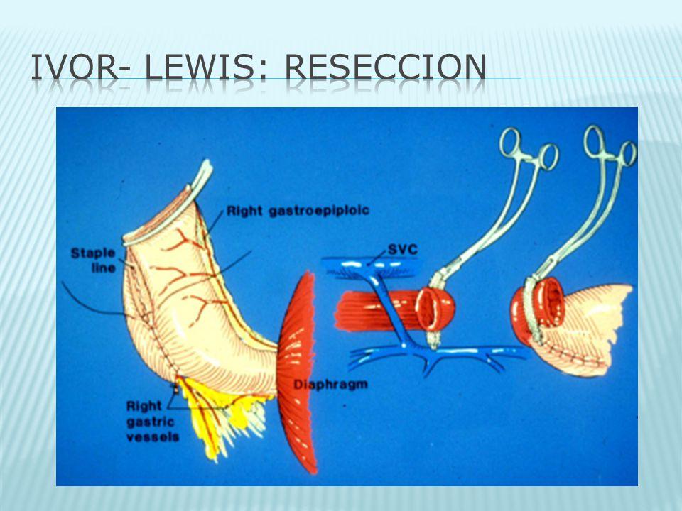IVOR- LEWIS: RESECCION