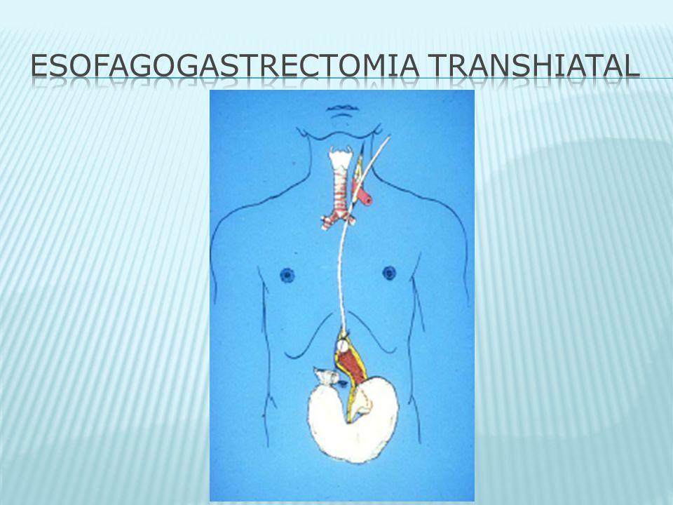 ESOFAGOGASTRECTOMIA TRANSHIATAL