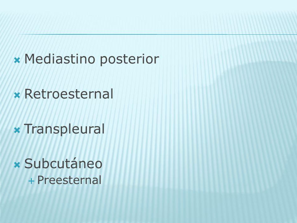 Mediastino posterior Retroesternal Transpleural Subcutáneo Preesternal