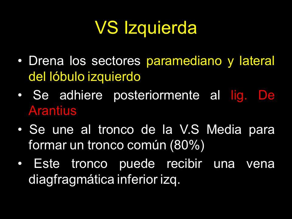 VS Izquierda Drena los sectores paramediano y lateral del lóbulo izquierdo. • Se adhiere posteriormente al lig. De Arantius.