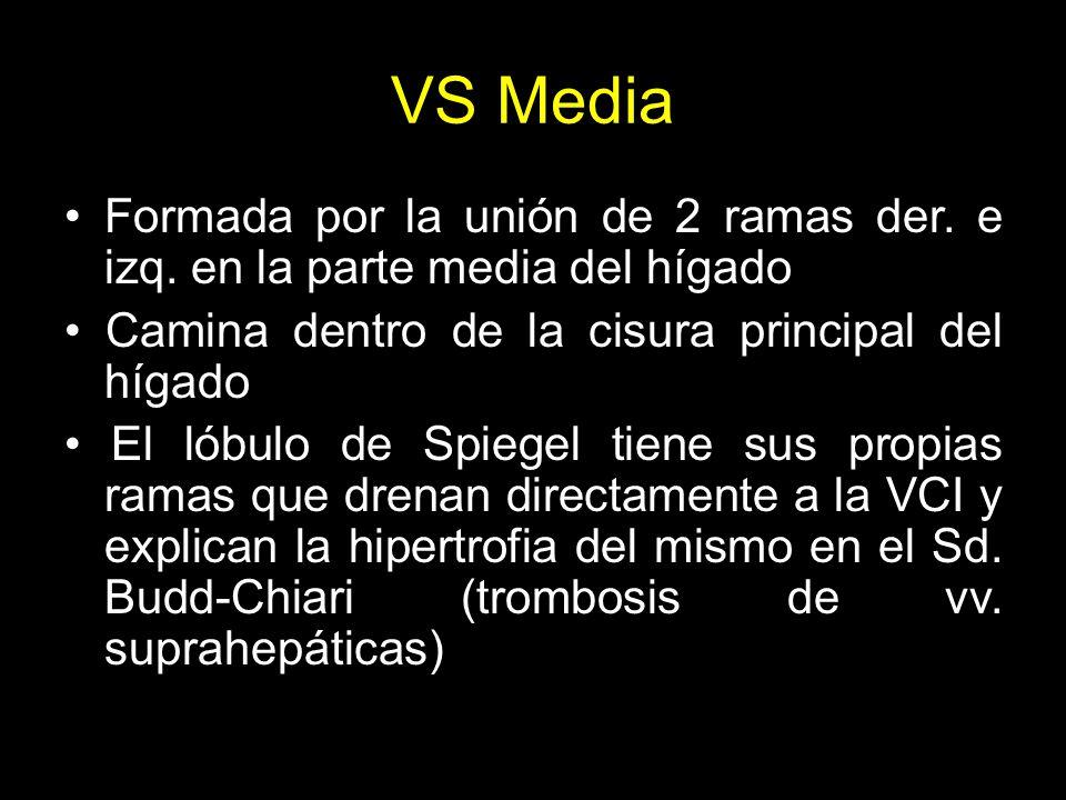 VS Media Formada por la unión de 2 ramas der. e izq. en la parte media del hígado. • Camina dentro de la cisura principal del hígado.