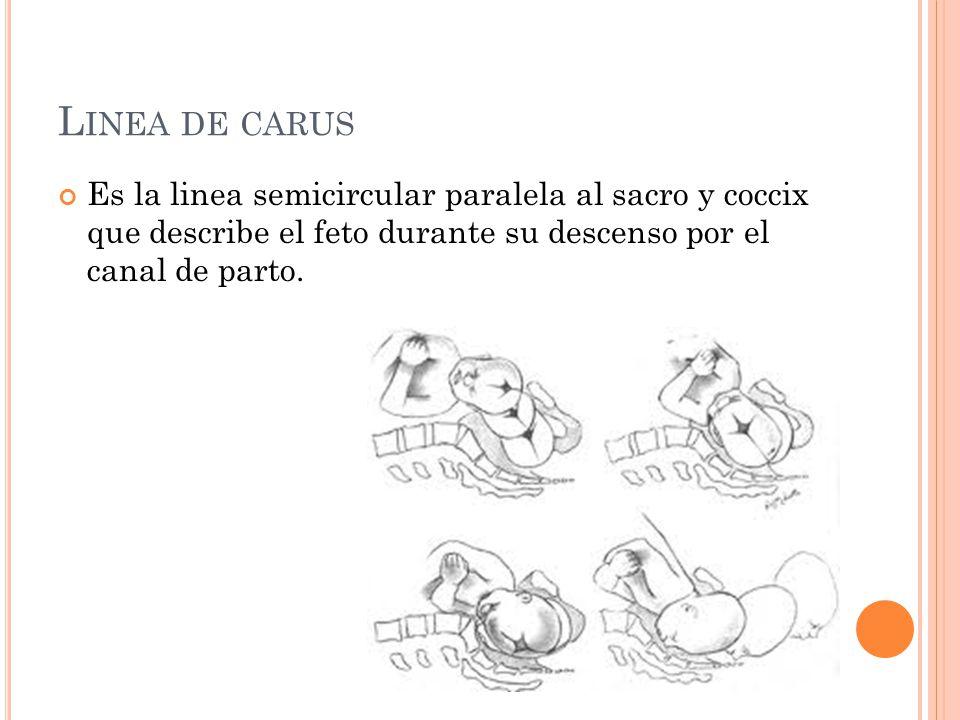 Linea de carus Es la linea semicircular paralela al sacro y coccix que describe el feto durante su descenso por el canal de parto.