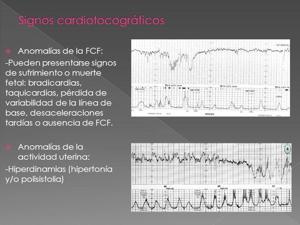 Signos cardiotocográficos