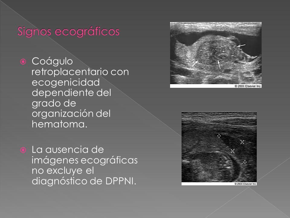 Signos ecográficos Coágulo retroplacentario con ecogenicidad dependiente del grado de organización del hematoma.
